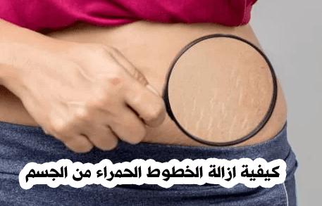 كيفية ازالة الخطوط الحمراء من الجسم